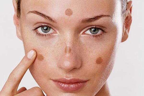 Da mặt chỗ trắng chỗ đen là tình trạng các sắc tố da phát triển hơn mức bình thường