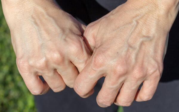 Gân xanh ở tay chính là hệ thống tĩnh mạch nông nằm dưới da tay