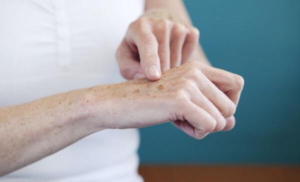 Da tay của chúng ta là vị trí dễ xuất hiện đốm nâu nhất vì không được bảo vệ khi làm việc