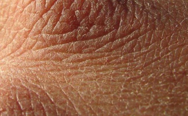 Ngứa mông là một trong nững biểu hiện của da bong tróc