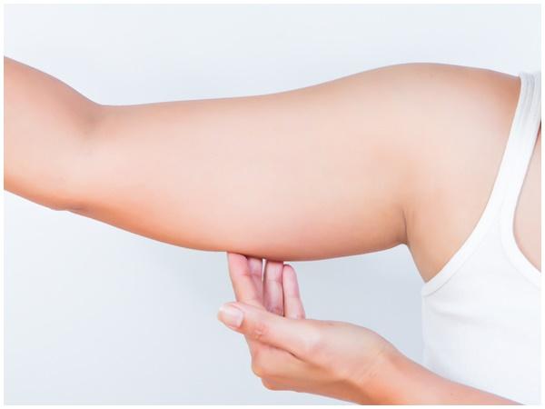 Rủi ro tiềm ẩn khi hút mỡ bắp tay mà bạn không biết