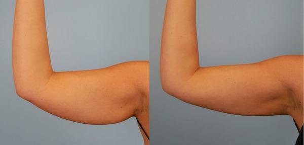 Vùng mỡ thừa ở cánh tay, bắp tay hay những vấn đề khác liên quan đến sức khỏe của mỗi người cũng khác nhau