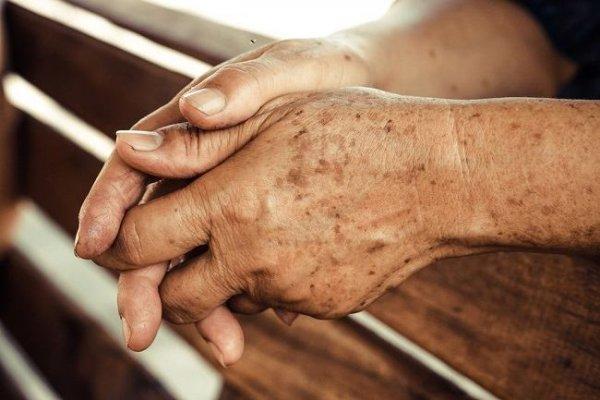 Da quá trình lão hóa và vấn đề tuổi tác là một trong những nguyên nhân gây nám da ở cánh tay