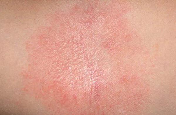 Bệnh ngứa da toàn thân tùy cơ địa mỗi người mà có ảnh hưởng tới sức khỏe