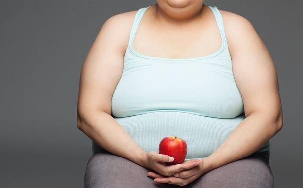 Người thừa cân, béo phì nên căng da bụng