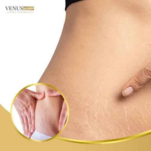 Khả năng phục hồi sẽ còn tùy thuộc vào tình trạng da