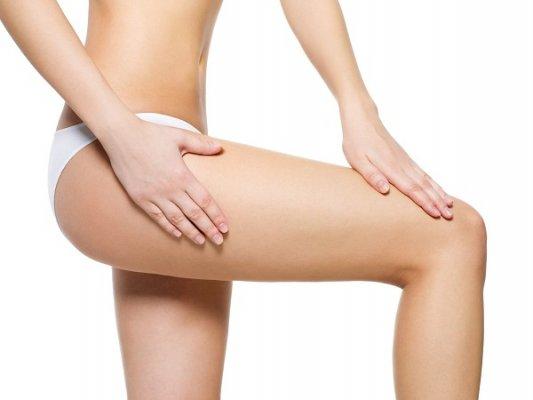 Rạn da mông lâu năm có thể cải thiện bằng cách sử dụng các biện pháp chữa trị phù hợp.