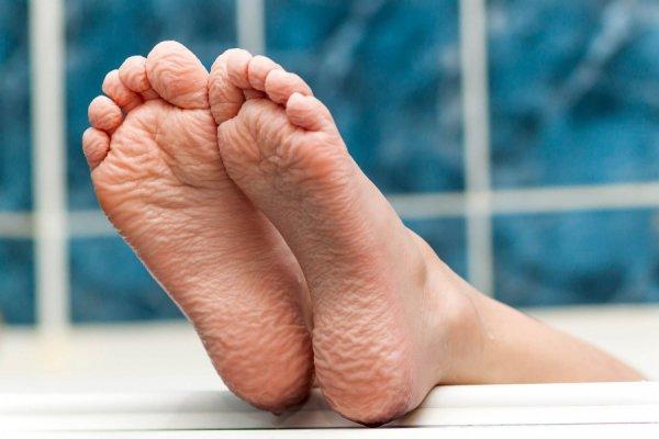 Da chân nhăn nheo, lão hóa phần lớn do tuổi tác