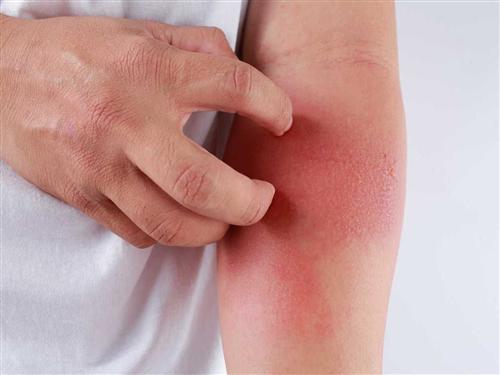 Các nốt đỏ nhỏ li ti mọc thành đám trên da, nổi thành cục như nốt muỗi đốt