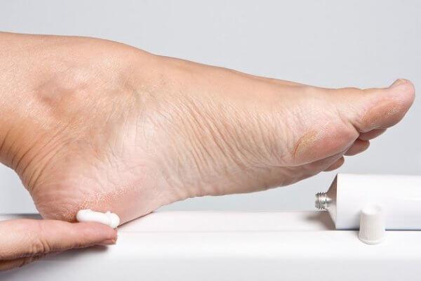 Dùng kem dưỡng dạng kem bôi lên toàn bộ vùng da chân bị tổn thương