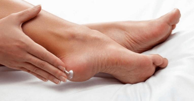 Bạn hãy chăm sóc da chân bằng cách bôi kem dưỡng ẩm 2 lần mỗi ngày