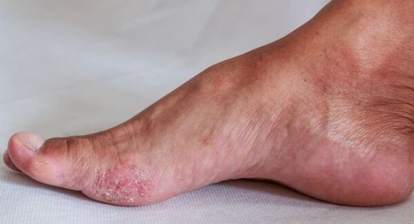 Da chân bị lột không nguy hiểm và không ảnh hưởng lớn đến sức khỏe