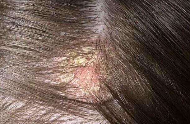 Da đầu khô bong tróc là những dấu hiệu ban đầu da đầu thiếu ẩm.