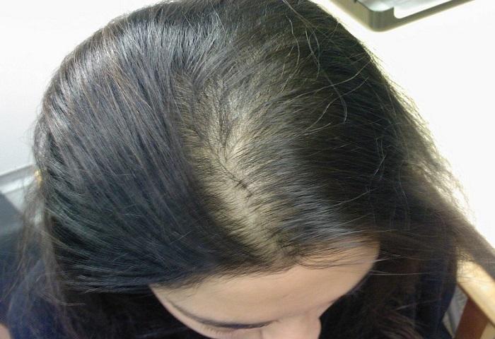 Giải đáp da đầu khô dùng dầu gội gì? Giúp lấy lại làn da chắc khỏe