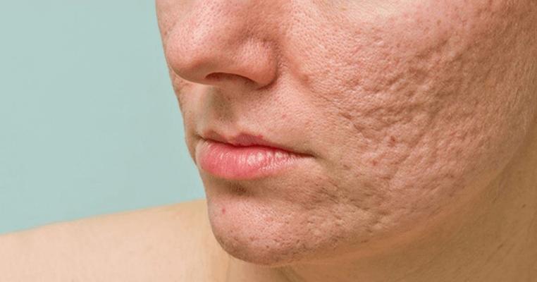 Da mặt rỗ có nhiều vết sẹo lõm là di chứng của các tổn thương nghiêm trọng trên da