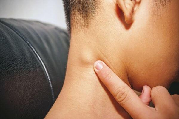 Thông thường, da nổi hạch sẽ sưng lên gần với nơi có vấn đề