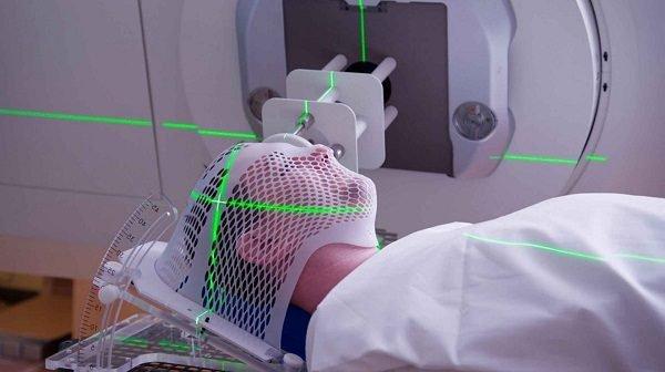 Phương pháp này sử dụng các loại hạt hoặc sóng có năng lượng cao diệt các tế bào ung thư