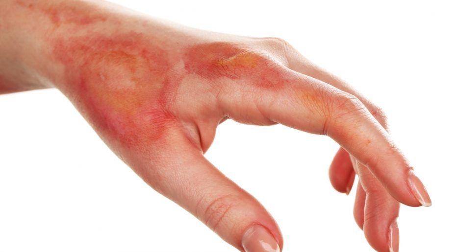 Nếu được bôi mỡ trăn kịp thời, vết bỏng sẽ không bị phồng và nhanh chóng lành hơn