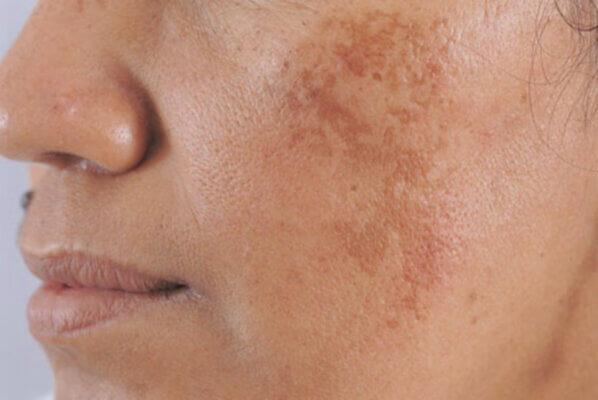 Nám da là sự gia tăng sắc tố melanin khiến các mảng nâu xuất hiện