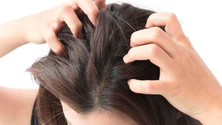 Ngứa ngáy, bong tróc, thậm chí chảy máu do gãi mạnh ở bệnh nhân á sừng da đầu