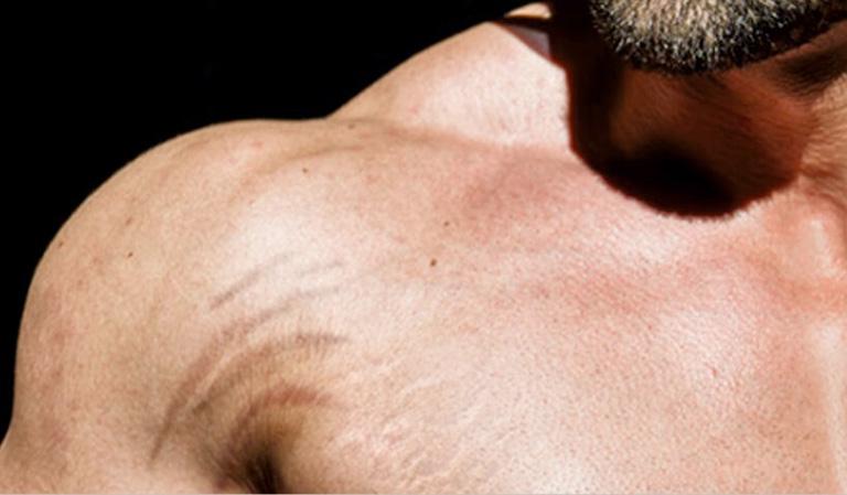 Rạn da bắp tay có thể tự lành, cũng có thể phát triển thành rạn da lâu năm.