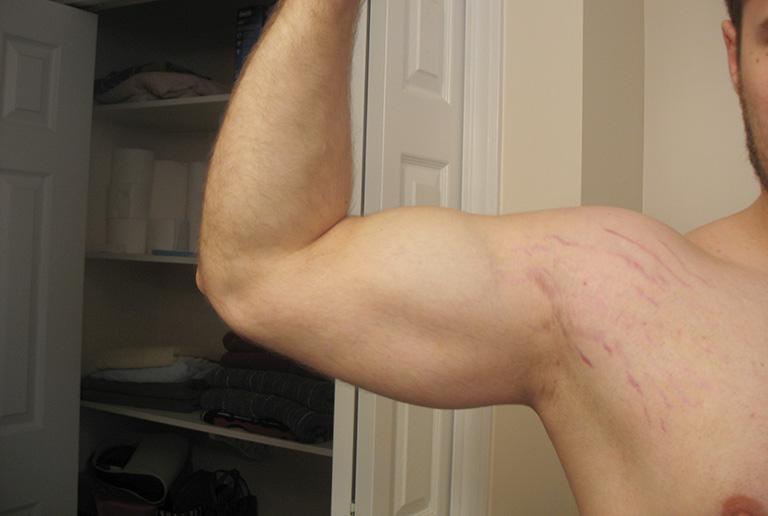 5+ giải pháp trị rạn da bắp tay được bác sĩ khuyên dùng