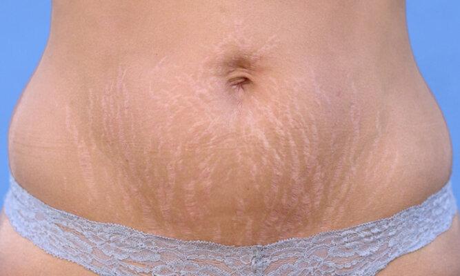 Rạn da chỉ ảnh hưởng đến vẻ bề ngoài của người mắc phải mà thôi