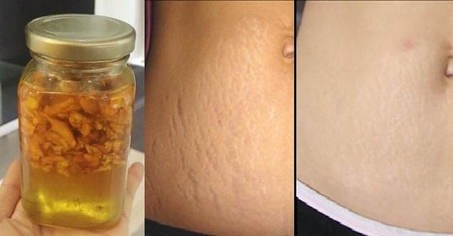 Nghệ giúp ngăn ngừa vết sẹo hình thành do rạn da, nứt da