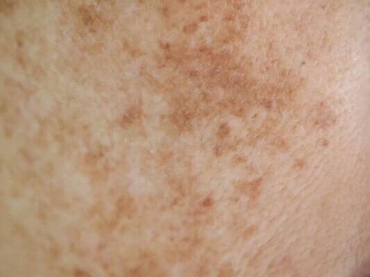 Nám da được hình thành bởi rất nhiều nguyên nhân