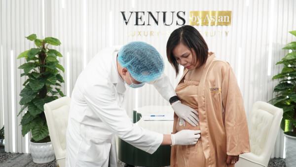 Bác sĩ thăm khám và phân tích mức độ rạn bụng cho khách hàng sử dụng dịch vụ trị rạn