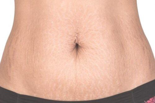 Trị rạn da bụng: Chia sẻ cách chữa từ chuyên gia giúp bạn hết mặc cảm