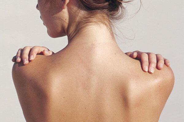 Chữa trị càng sớm thì việc sở hữu làn da sạch rạn sẽ càng dễ dàng hơn