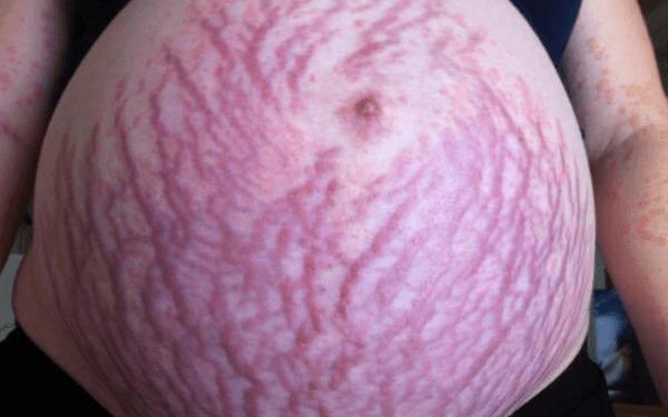 Tốp 8+ cách trị rạn da bà bầu hiệu quả, an toàn cho cả mẹ và bé