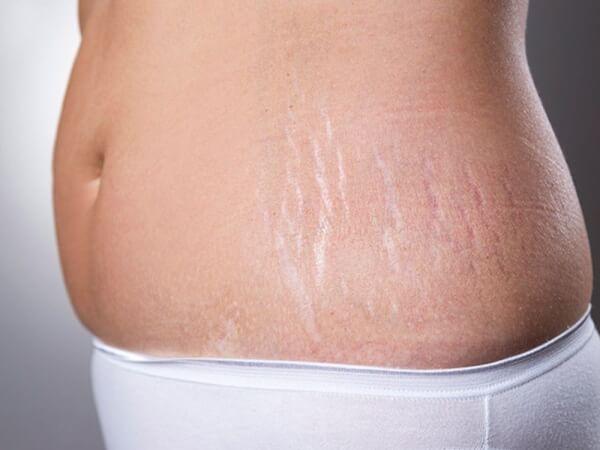 Rạn da hông không phải bệnh lý nên không gây nguy hiểm cho bạn