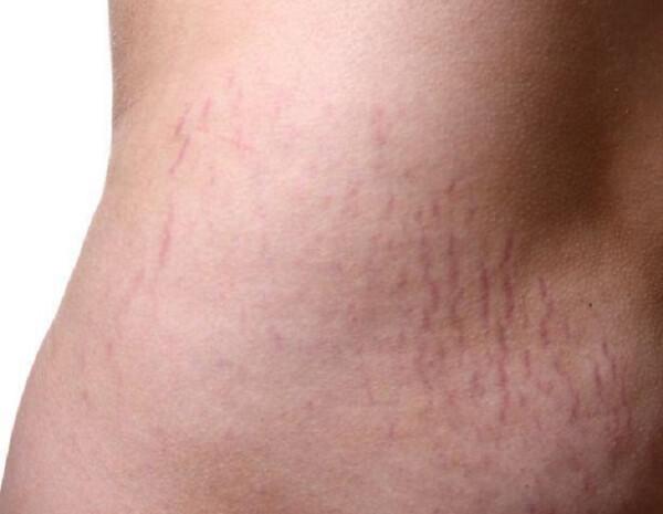 Do elastin và collagen bị đứt gãy dẫn tới tình trạng rạn da