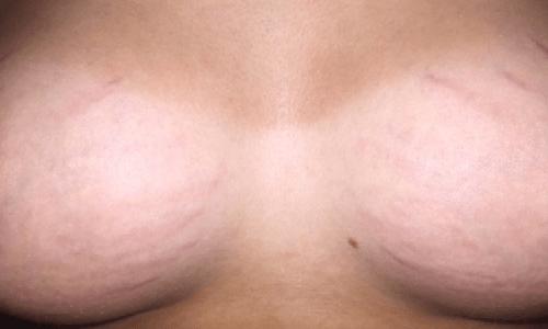 Mặc dù đã spa trong khoảng thời gian khá dài nhưng chị Hà cảm nhận các vết rạn vẫn còn nguyên trên cơ thể, đặc biệt ở vùng da ngực