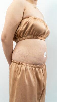Chị Hằng bị rạn ghé thăm sau khi tăng cân nhanh chóng trong khoảng thời gian gần 3 tháng WFH