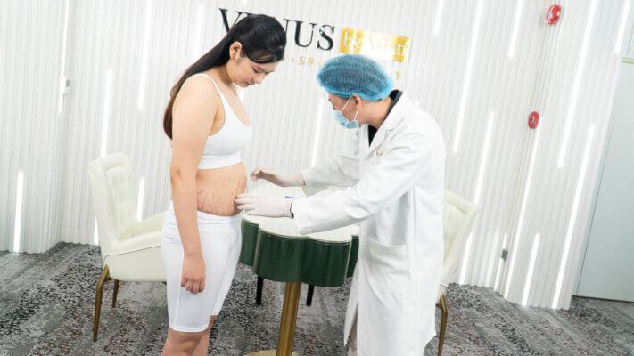 Bác sĩ đang thăm khám tình trạng rạn da bụng màu đen của chị Dung trong phòng điều trị rạn da