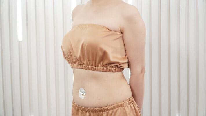 Chị em phụ nữ tự tin lấy lại làn da mịn màng sạch rạn sau khi điều trị