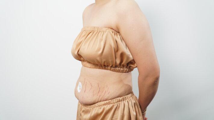 Rạn da sau sinh không thể tự khỏi nếu không can thiệp điều trị bằng bất kì phương pháp nào