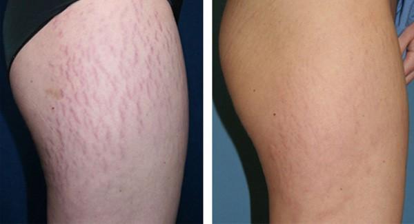 Laser Ultra Pulse Plus giúp xóa sạch các vết rạn trên da chỉ sau 1 liệu trình