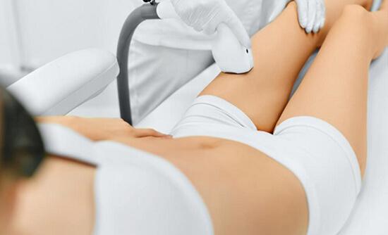 Chị Loan đang được thực hiện trị rạn với công nghệ Laser Ultra Pulse Plus