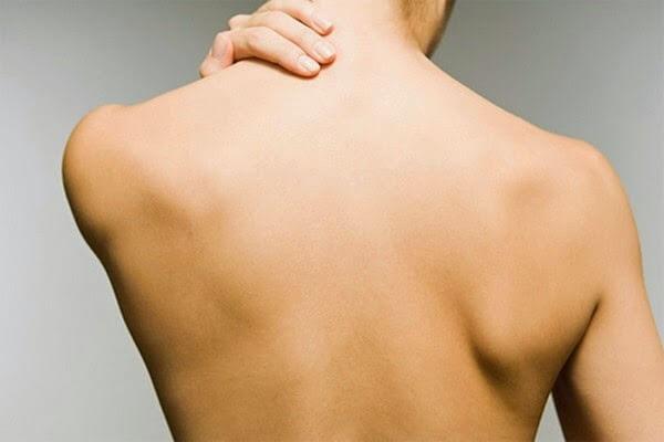 Vùng lưng của khách hàng sau khi điều trị rạn da với công nghệ Laser ưu việt