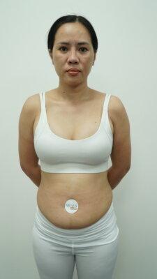 Cân nặng cán mốc 68 khiến thân hình người phụ nữ đất mỏ trở nên nặng nề kém duyên