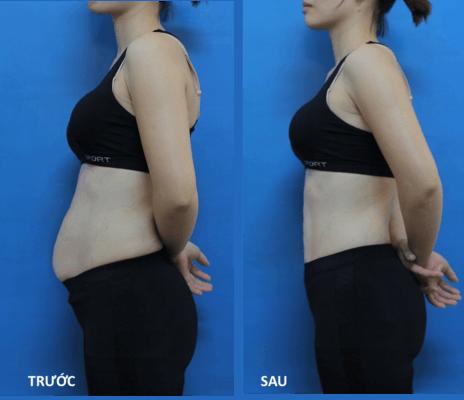 Hình ảnh khách hàng Tuệ Linh trước và sau khi giảm béo thành công