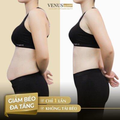 Hình ảnh trước và sau khi giảm béo thành công của chị Việt Hà