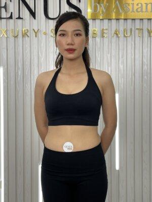 Giảm béo đa tầng Max Burning là công nghệ hiện đại bậc nhất hiện nay có khả năng chuyển hoá mỡ trắng thành mỡ nâu