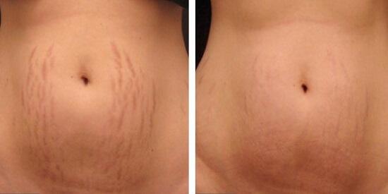 Kết quả trị liệu cho thấy sự khác biệt trước và sau với Laser Ultra Pulse Plus