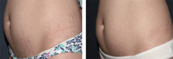 Hình ảnh trước và sau vùng trị liệu rạn da của khách hàng