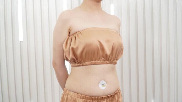 Nhờ Laser Ultra Pulse Plus, chị Hoài Anh có được vùng da sau điều trị mịn màng sạch rạn tới 97%